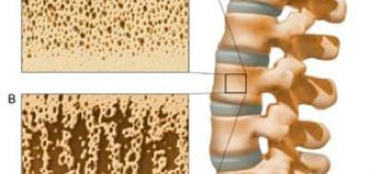 Magneziu si osteoporoza